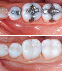 Before-After-Amalgam-Removal