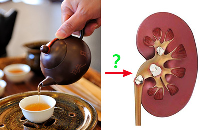 tea stone