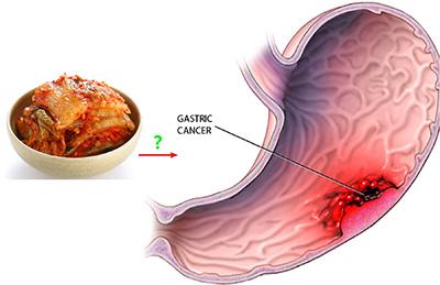 Kimchi cancer